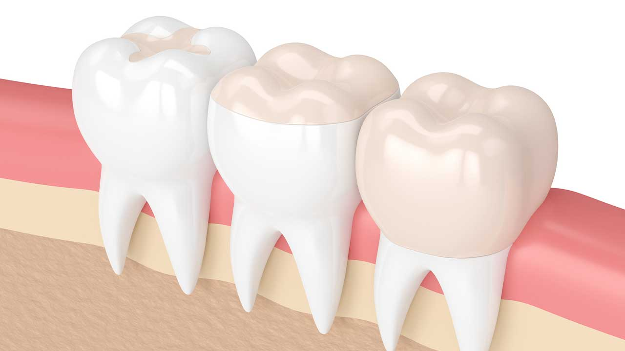 You will learn about fixed prosthodontics during dental administrative assistant training